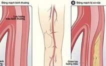 Bệnh động mạch ở chân - Những điều cần biết
