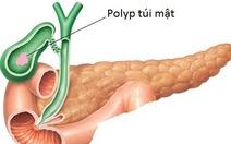 92% polyp túi mật có bản chất lành tính