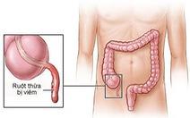 Những điều cần biết về viêm ruột thừa