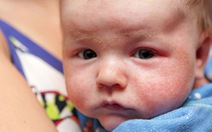 Đừng đơn giản khi trẻ mắc bệnh da