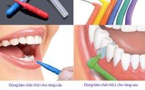 Vệ sinh răng bằng bàn chải kẽ