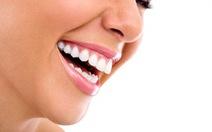 Thói quen tốt để có hàm răng đẹp