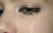 Chảy nước mắt sống - nguyên nhân và cách xử trí