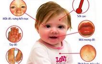 Bệnh Kawasaki ở trẻ em