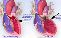 Những cách để phòng tránh suy tim