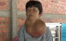 Cắt thành công bướu cổ nặng gần 5kg cho một phụ nữ