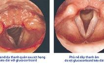 Tổn thương thanh quản do glucocorticoid xịt họng