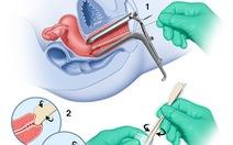 Phòng ngừa và sàng lọc ung thư cổ tử cung
