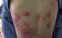 Xác minh vụ bé trai 10 tuổi nghi bị bạo hành