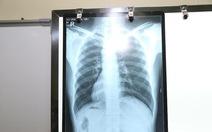 Nam bệnh nhân phủ tạng đảo ngược ở Hà Nội: tim bên phải, gan bên trái