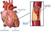 Biến chứng tim mạch của bệnh đái tháo đường