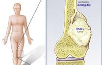 Ung thư xương và đau