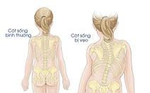 Tật cong vẹo cột sống ảnh hưởng đến chất lượng cuộc sống của trẻ