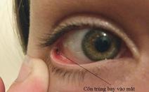 Đề phòng chấn thương mắt do côn trùng