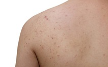 Điều trị mụn trứng cá ở lưng và ngực