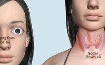 Bạn có biết về bệnh basedow?