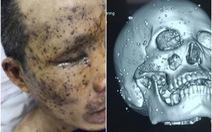 Một bệnh nhân bị cả trăm mảnh kim loại găm vào mặt