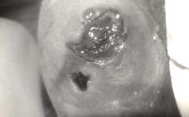 Bệnh loét da 'ăn thịt người' bí ẩn xuất hiện ở Úc