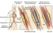 Can thiệp động mạch vành là gì?