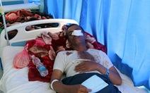 Yemen: Đang ăn cưới bị dội bom, ít nhất 40 người chết