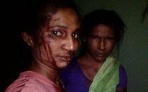 Cô gái Ấn Độ một mình cầm gậy đánh hổ cứu gia súc
