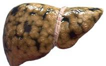 Dinh dưỡng trong bệnh gan nhiễm mỡ