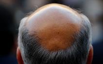 Hi vọng mới cho người hói đầu về thuốc giúp mọc tóc