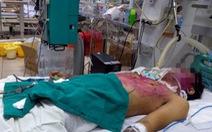 Một bệnh nhân thủy đậu cực nặng liên quan dùng sai thuốc