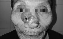 Tái tạo toàn bộ mũi và má cho bệnh nhân ung thư