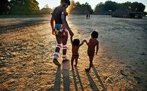 Vì sao có kiểu giết trẻ con khuyết tật tại bộ tộc Kamayurá?