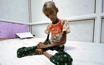 Ở Yemen, đến khóc cũng không còn nước mắt vì đói khát