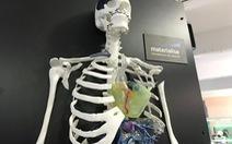 Các bệnh viện đã bắt đầu tạo ra bộ phận cơ thể bằng công nghệ in 3D