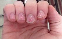 10 bệnh hiện lên móng tay