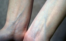 Vì sao tĩnh mạch có màu xanh?