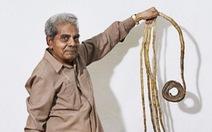 Cắt bỏ bộ móng tay kỷ lục Guinness thế giới sau 66 năm gìn giữ