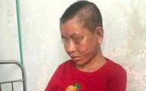 Một người làm thuê bị chủ đánh đến sẩy thai, gãy xương
