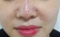 Tiêm filler nâng mũi, một phụ nữ bị biến chứng