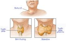Những điều cần biết dành cho bệnh nhân Basedow