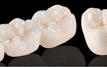 Phủ sứ trắng răng nano: coi chừng!