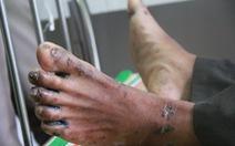 Một học sinh mắc hội chứng viêm da dày sừng tay, chân tử vong