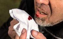 Cẩn thận với tình trạng bệnh lý ho ra máu
