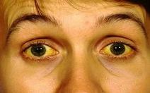 Viêm gan siêu vi A: Bệnh lây qua đường tiêu hóa
