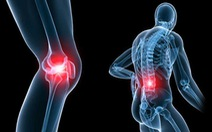 Phòng tránh bệnh xương khớp
