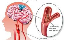 Dấu hiệu và cách xử trí cơn thiếu máu não thoáng qua