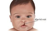 Chăm sóc trẻ bị khe hở môi trước và sau phẫu thuật