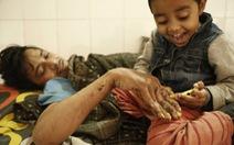 Trải qua 24 lần phẫu thuật, 'người cây' Ấn Độ lại tiếp tục mọc 'vỏ'