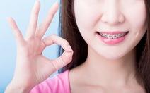 Phương pháp niềng răng phù hợp cho tuổi thanh, thiếu niên