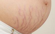 Rạn da và cách phòng ngừa