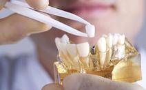 Điều trị thế nào khi trụ răng Implant bị xô lệch?