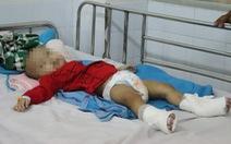 Bệnh viện Nhi đồng 1 liên tục cấp cứu trẻ phỏng nước sôi, nổ bình gas